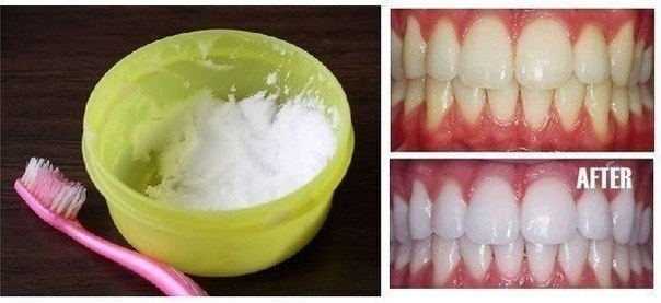 Wonderful Idea for Natural Teeth Whitening in Minutes at Home  Wonderful Idea for Natural Teeth Whitening in Minutes at Home