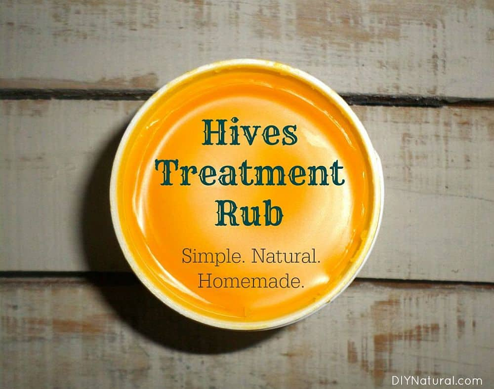 Homemade hives treatment rub recipe